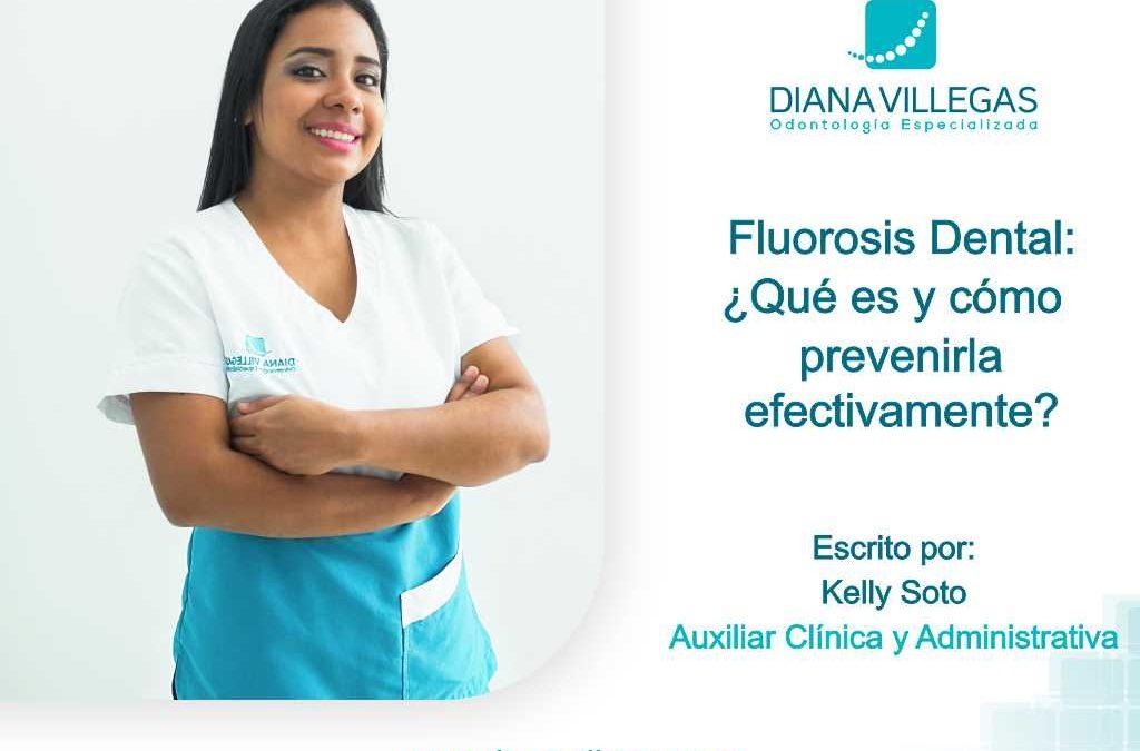 Fluorosis Dental ¿Qué es y cómo prevenirla efectivamente?